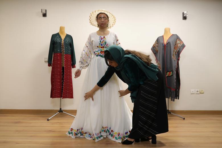 مدلینگ لباس؛ شغل جدید قربانی اسیدپاشی در ایران+عکس
