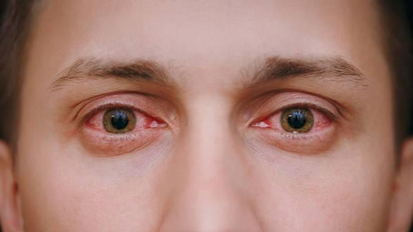 تاثیر ویروس کرونا بر چشم؛ آیا کرونا به بینایی آسیب می زند؟