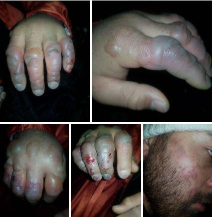 تعدادی از کوهنوردان ی یخ بسته که از دیروز گرفتار بهمن شده بودند، پس از نجات، تصاویرشان منتشر شد.